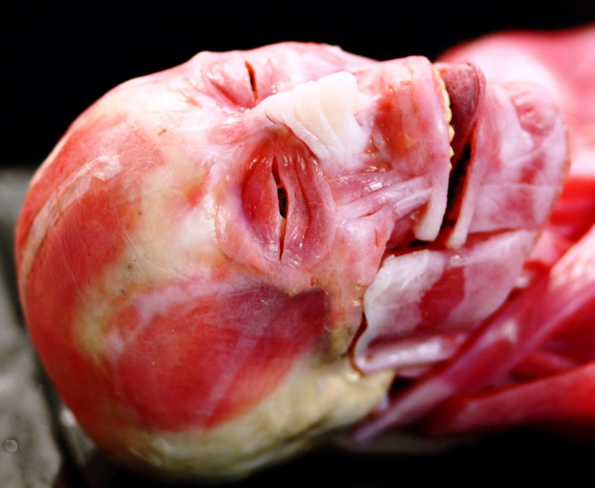 synthetic tissue model