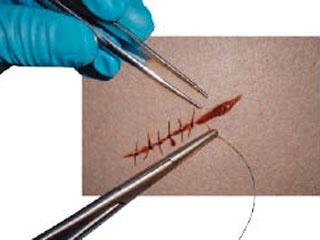 suture moulage