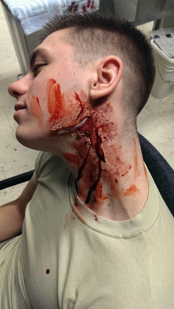 neck moulage injury