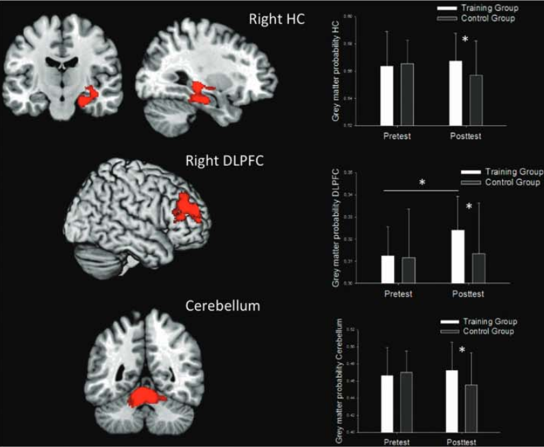 video game effects on brain
