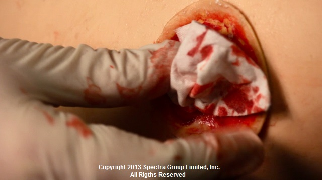 simulated blood moulage