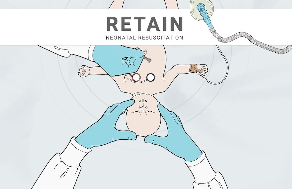 Neonatal Resuscitation Board Game
