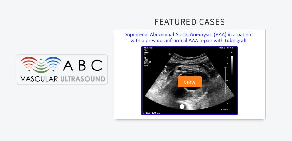 free vascular ultrasound medical simulation scenarios