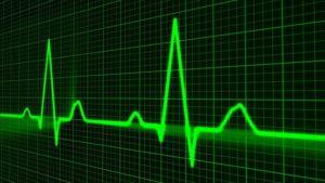 cardiac rhythm simulation
