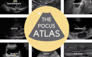Point of Care Ultrasound Atlas