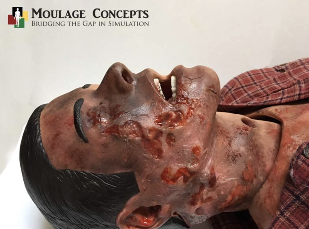 Moulage Concepts Explosion Trauma